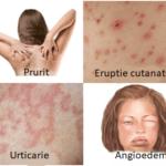 simptome alergie medicamente