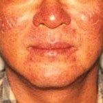 eczema soare