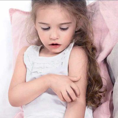 dermatita_atopica_copii